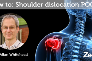 How To: Shoulder dislocation POCUS